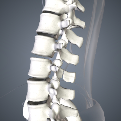 Fractured Vertebrae