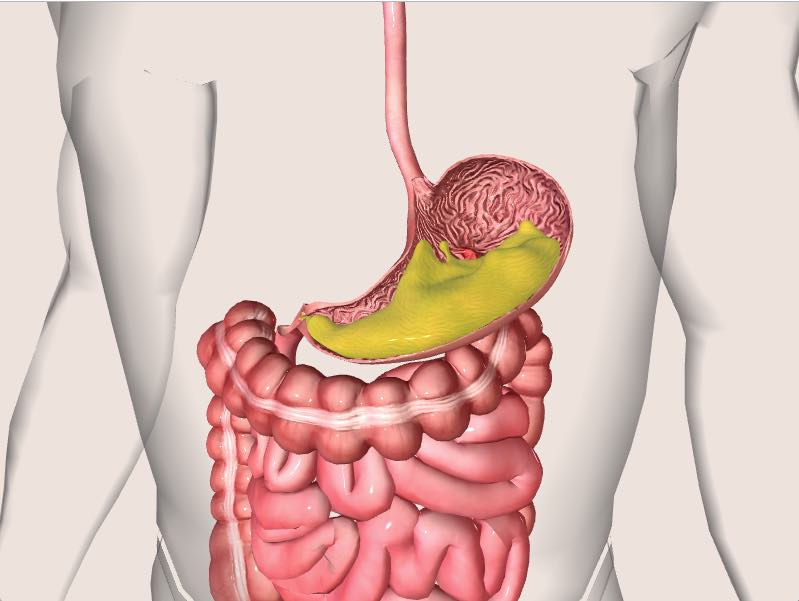 Stomach Ulcer Causes Symptoms And Diagnosis