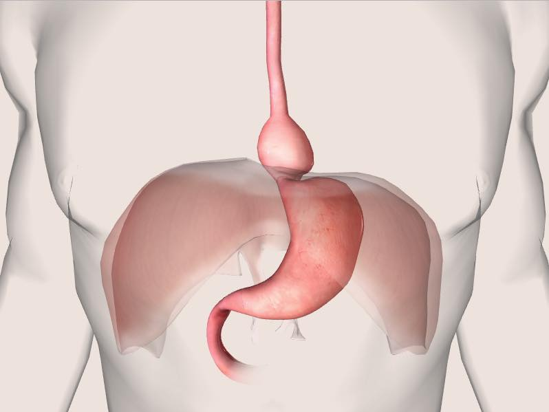 Hernia Causes Treatment And Prevention